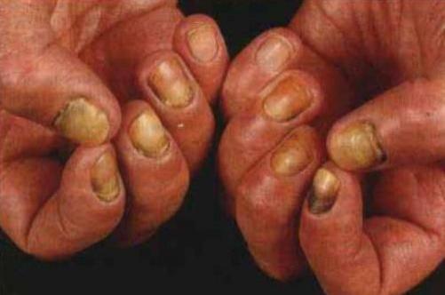 Патогенный грибок ногтей - О грибке ногтей